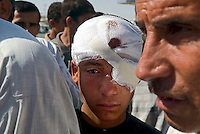 Fallujah, Iraq, June 6, 2003.Mohammed Abdallah, 15, was hit by machine gun bullet shrapnel in the face as he was standing in frontof his house; Fallujah sees a lot of armed resistance against the US troops.