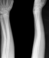 X-Ray - Greenstick fracture of radius and bowing of ulna.