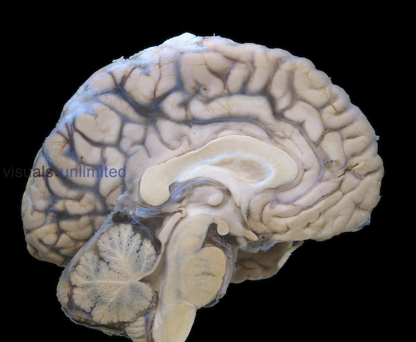 Human brain sagittal section, showing the arachnoid mater and blood vessels intact, the cerebellum, and medulla oblongata.