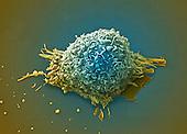 Human lung cancer cell. SEM X4500