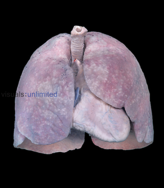 Healthy human lungs.