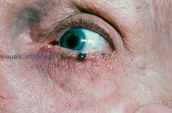 Pigmented hidrocystoma on the lower eyelid