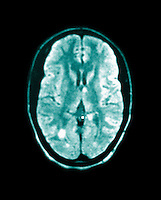 MRI brain scan of a patient with Multiple sclerosis