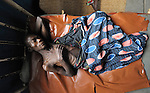 A male patient in a bed in the United Methodist Hospital in the village of Wembo Nyama, DR Congo.