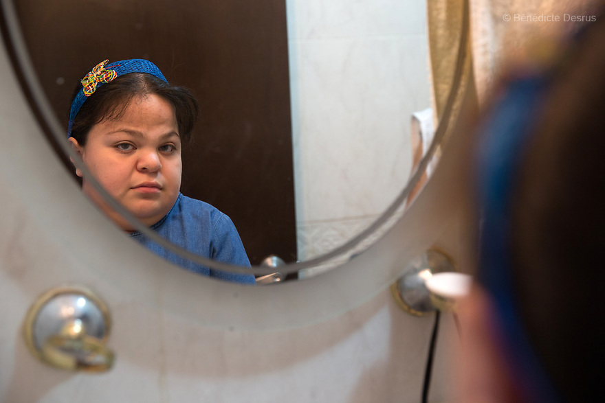 """Ana Ximena Navarro is pictured at her home in Guadalajara, Mexico on February 22, 2017. Ximena was diagnosed as an infant with Hurler syndrome. Hurler syndrome is the most severe form of mucopolysaccharidosis type 1 (MPS1), a rare lysosomal storage disease, characterized by skeletal abnormalities, cognitive impairment, heart disease, respiratory problems, enlarged liver and spleen, characteristic facies and reduced life expectancy. Ximena was being given enzyme replacement therapy (ERT) when she was 19 months old, and she was suddenly able to eat and sleep. She is now 12, and has normal hormonal development for her age, although some mental delay, according to her father. """"Without the treatment, she would have died from all the complications — untreated, children have a very bad quality of life and typically die before they are seven"""", her father says. Photo credit: Bénédicte Desrus"""