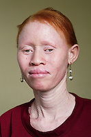 Janneth, one of 12 members of the Albino Revolution Cultural Troupe (ARCT), created in 2000 by artist Tito David Ntanga. They organise musical and theatre performances at conferences, meetings and cultural events. Having already campaigned around issues like HIV/AIDS and civil rights, they are now campaigning against the stigmatisation and killing of albinos. Discrimination against albinos is a serious problem throughout sub-Saharan Africa, but recently in Tanzania albinos have been killed and mutilated, victims of a growing criminal trade in albino body parts fuelled by superstition and greed. Limbs, skin, hair, genitals and blood are believed by witch doctors to bring good luck, and are sold to clients for large sums of money, carrying with them the promise of instant wealth.