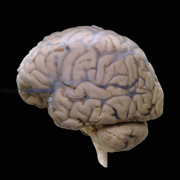 Human brain, lateral surface, with the arachnoid mater and external cerebral veins intact. The brian is showing the cerebrum, cerebral arteries, cerebellum, and hindbrain. The cerebellum is involved with balance and control of the muscles. The brain contains more than 300 billion neurons and is composed mainly of gray matter which originates and processes nerve impulses and white matter which transmits the impulses.
