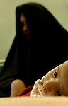 Two-month-old Ali Abd Al-Hussain has had dysentery for 20 days as a result of impure drinking water. Fifty percent of the cases at the al-Alawia hospital are the result of undrinkable water, according to Dr. Mazin Essa.