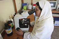 Doctor examining a tissue specimen microscopically in the laboratory of an Afghanistan hospital