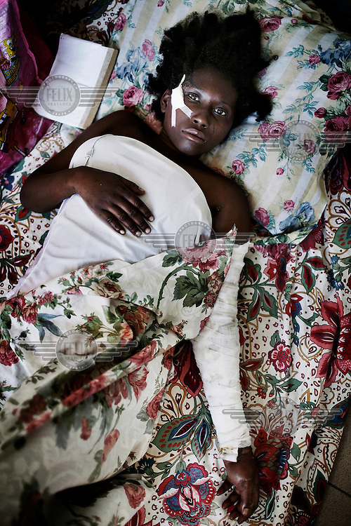 A girl lies on the floor in the hallway of the Peace Hospital, where hundreds of patients are stretched out on the front lawn and lying in the halls, waiting for treatment. A magnitude 7.0 earthquake struck Haiti on 12/01/2010, killing more than 200,000 people.