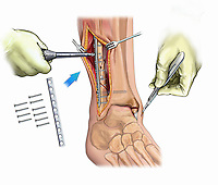 Biomedical illustration showing the fixation of a fibular maleollar fracture including an inset of the fixation hardware. Also depicted in the incision over the medial malleolus.