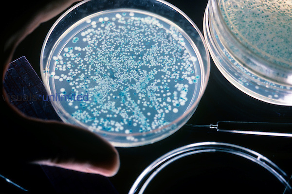 E. coli colonies, normal forms are blue and white colonies are recombinant forms...