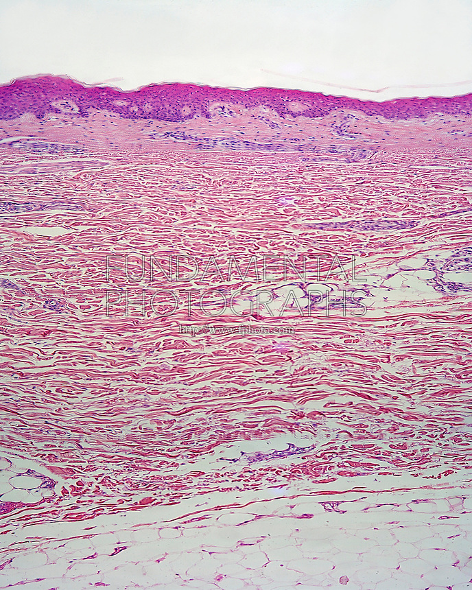 ANIMAL TISSUE - EPITHELIUM<br /> Skin Layers (LM) 40x mag<br /> Showing three layers, epidermis made of stratified squamous epithelium, dermis made of fibrous connective tissue, and hypodermis mad of adipose fat cells.