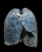 A smoker's damaged lungs.