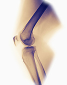 Normal knee x-ray of a 33 year old woman