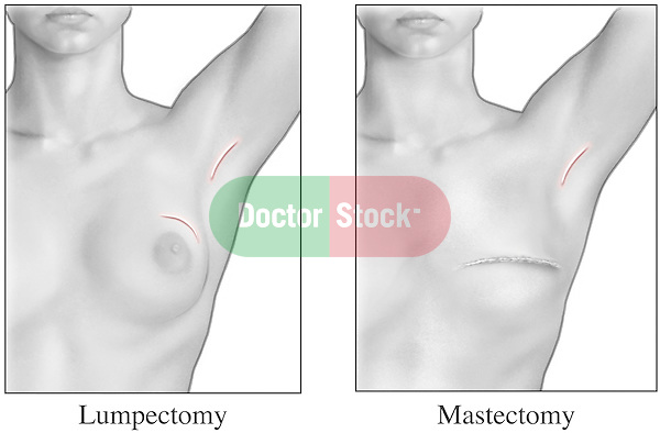 This medical illustration depicts the appearance of the breast after a lumpectomy procedure to remove cancerous tissue, and a post-operative mastectomy to remove breast cancer.