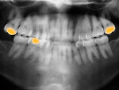 Panorex x-ray of the jaw showing several fillings