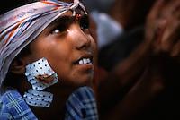 Ragazzi dell' hasram di Kailash Satyarthi Nobel per la pace 2014 (inizi anni 2000)<br /> ragazzo con cerotto sul viso