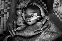 Kalma IDP camp, South Darfur, July 29 2004.Abacar Abdallah, 25 months old, on his mother Mariam lap. He suffers from severe malnutrition, weighing at only 5.2kg. Despite desperate last minute efforts by the MSF medical staff to save him, he will die a few moments after this photo was taken. He is one of 2000 children in the MSF emergency nutrition program in this camp.
