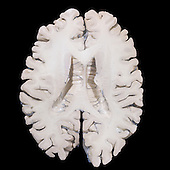 Human brain section, inferior view.