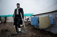 SYRIA, ATMEH. Ahmad Mohammed has been wounded by a mortar that hit his house in Idlib province. .He is now living with no assistance in a camp for displaced Syrians in Atmeh on January 12, 2013. The camp is on the border with Turkey and is providing shelter to nearly 13,000 people; most of them are children. ALESSIO ROMENZI