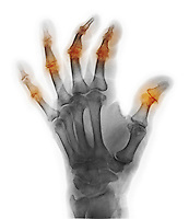 Colorized x-ray of the hand of an 85 year old man with degenerative arthritis