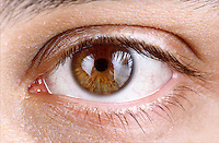 HUMAN EYE<br /> Constricted pupil<br /> (2 of 2)<br /> In bright light the pupil constricts.