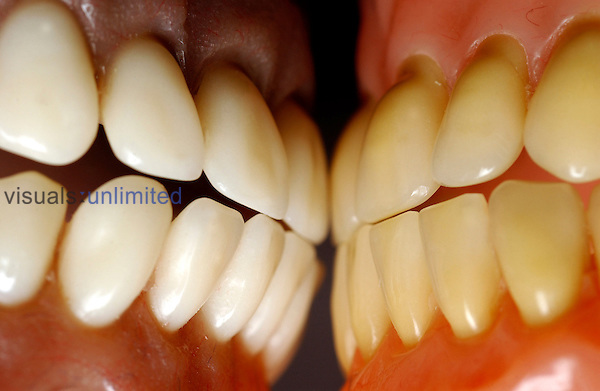 Close-up of two full sets of dentures. Royalty Free
