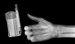X-ray image of cigarettes and hand (white on black) by Jim Wehtje, specialist in x-ray art and design images.