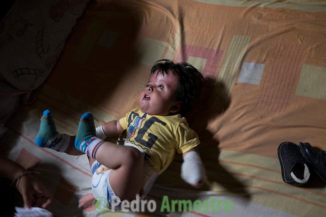 2015-03-04. UN &Aacute;NGEL CON LAS ALAS PEGADAS. &copy; Calamar2/Susana HIDALGO &amp; Pedro ARMESTRE<br /> <br />  &Aacute;ngel C&eacute;sar Alonso, de 10 meses, naci&oacute; por ces&aacute;rea en Chiclayo (Per&uacute;) y los m&eacute;dicos le diagnosticaron s&iacute;ndrome de Apert, una enfermedad gen&eacute;tica que afecta a la forma de la cabeza y que hace que el peque&ntilde;o tenga los ojos abultados y padezca sindactilia (los dedos de las manos y de los pies pegados). El s&iacute;ndrome de Apert es una de las 7.000 enfermedades raras que existen en el mundo y su prevalencia oscila entre 1 y 6 casos por cada 100.000 nacimientos. La historia de este beb&eacute; es la historia de unos padres coraje, C&eacute;sar Cruz y Edita Jim&eacute;nez, que se desviven para que el peque&ntilde;o pueda tener la mejor calidad de vida posible. C&eacute;sar y Edita acudieron el pasado mes de marzo junto a su beb&eacute; al hospital San Juan de Dios, en Chiclayo, al reclamo de una campa&ntilde;a solidaria de intervenciones quir&uacute;rgicas organizadas por la Sociedad Espa&ntilde;ola de Cirug&iacute;a Pl&aacute;stica, Reparadora y Est&eacute;tica (Secpre) y la ONG Juan Ciudad. Los cirujanos espa&ntilde;oles le operaron las manos para separar unos dedos de otros. La intervenci&oacute;n dur&oacute; aproximadamente una hora y media y el peque&ntilde;o necesit&oacute; de curas posteriores.<br /> La operaci&oacute;n fue el primer paso en la mejora de la salud de &Aacute;ngel. Necesitar&aacute; al menos otra m&aacute;s para separar los dedos de los pies. Sus padres son humildes y apenas tienen recursos.  C&eacute;sar, el padre, trabaja levantando casas de adobe. Edita, la madre, vive para su hijo y le gustar&iacute;a en un futuro retomar su profesi&oacute;n de enfermera. &copy; Calamar2/Pedro ARMESTRE<br /> <br />  AN ANGEL WITH THE WINGS ATTACHED. &copy; Calamar2/Susana HIDALGO &amp; Pedro ARMESTRE<br /> <br /> Angel C&eacute;sar Alonso was born in Chiclayo (Peru) and was diagnosed w
