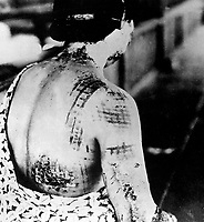 The patient's skin is burned in a pattern corresponding to the dark portions of a kimono worn at the time of the explosion.  Japan, ca. 1945.  (Corps of Engineers)<br /> Exact Date Shot Unknown<br /> NARA FILE #:  077-MDH-6.55b<br /> WAR &amp; CONFLICT BOOK #:  1244