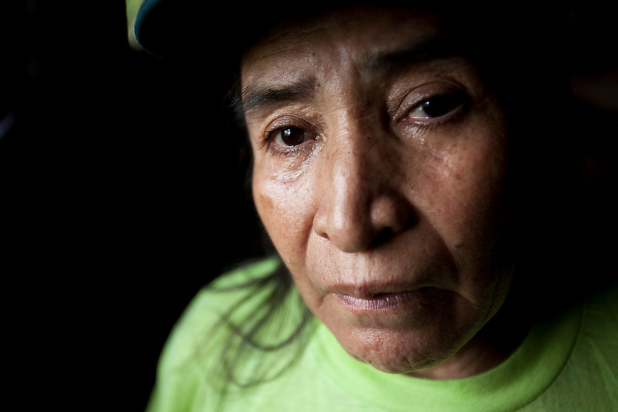 Alba Cueran Pozos, 65, has lived in San Carlos, for over 40 years. She suffers from cancerous tumors and the family has spent enormous amounts on her treatment.  She remains in terrible pain.  San Carlos is a community based around petroleum production and suffering one of the highest cancer rates in Ecuador.