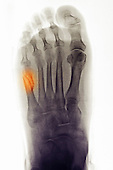 Foot x-ray showing a fifth metatarsal fracture in a 79 year old woman