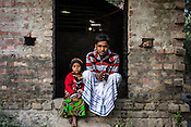 Md. Abdul Shah (33) poses for a photo with his daughter 5 year old daughter, Rukhsar Khatoon in Shahpara village in Panchal block of Howrah district in West Bengal, India.<br /> Rukhsar is India's last child in India paralysed by polio.