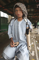 Boy patient with an artificial arm and hand in an orthopedic center in Afghanistan