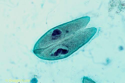 PR02-017b  Paramecium - conjugation - Paramecium spp.  250x