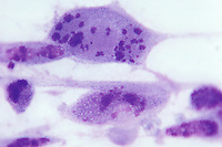 Herpes Simplex viral infection of cells. LM X360