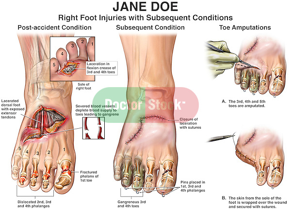 Right Foot Injuries With Subsequent Conditions Doctor Stock