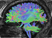 Diffusion MRI of the central human brain. Tractography is a 3D modeling technique used to visually represent neural tracts using data collected by diffusion tensor imaging (DTI), magnetic resonance imaging (MRI), and computer-based image analysis.