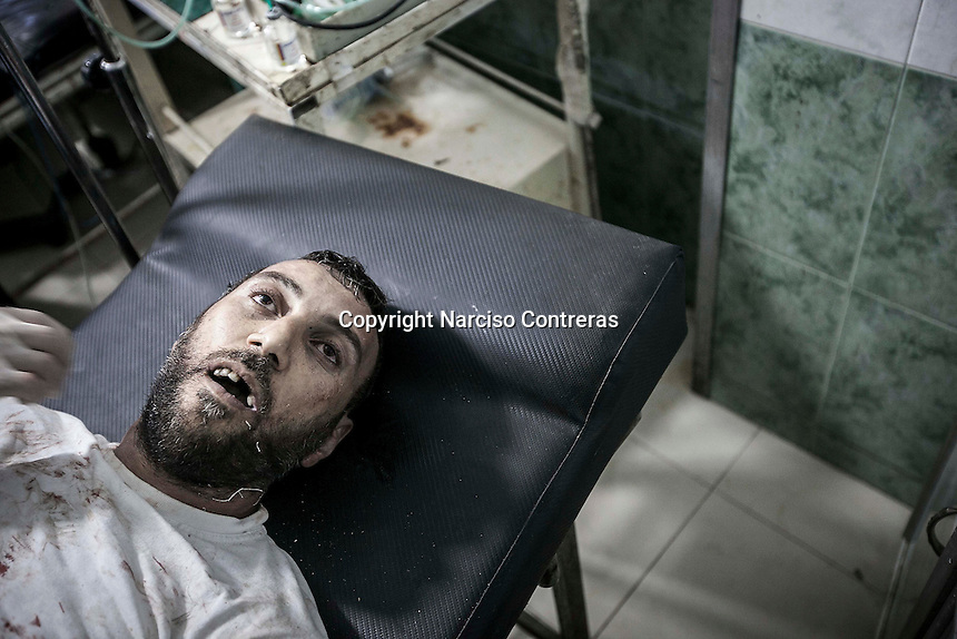 A body of a Syrian civilian lies down on a trolley at the emergency ward of a hospital after has arrived dead with a wound at his chest made by a small shrapnel which had perforated his heart and killed him during mortar shelling in Hananu district at the northeast of Aleppo City.