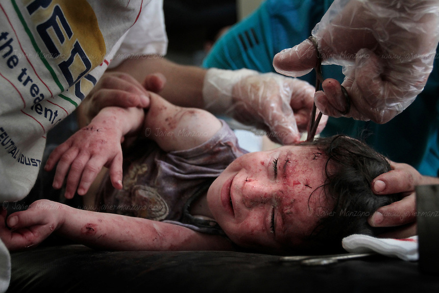 A small child cries in pain as doctors attempt to remove the last pieces of shrapnel after a mortar round exploded in a nearby apartment complex in central Aleppo. September 20, 2012...© Javier Manzano