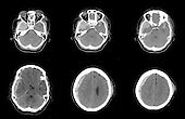 CT scans of a 67 year old woman who fell and hit her head causing an acute subdural hematoma, subfalcine herniation, acute hemorrhagic contusion, acute subarachnoid hemorrhage, and skull and facial bone fractures.