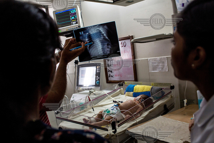 A doctor and a team of nurses check an x-ray from a new born baby who is being kept under observation in the postnatal intensive care unit of the Duncan Hospital.