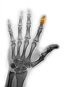 Colorized x-ray of the hand showing a fracture of the distal phalanx of the index finger.