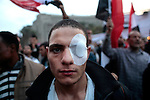 Wounded protester with a bandage covering his eye on Tahrir Square  on November 27, 2011 in Cairo, Egypt.
