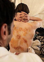 A victim of police brutality and torture is having his wounds cleaned by a voluteer doctor in Tahrir square, after the revolution that saw president Hosni Mubarak ousted from office. Some protesters still occupied the Tahrir Square until March 9, when they were chased away by armed men,  while life in other parts of the city returned to normal.