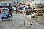 Santy Villanueva walks with his crutches on the street in Estancia, a town in the Philippines' Iloilo Province. He is president of the Federation of People with Disabilities of Estancia.