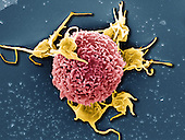 T Cell with associated Platelets. SEM