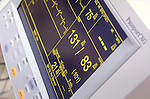 display of heart rate and blood pressure on vital statistics monitor
