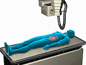 Biomedical illustration showing a man lying supine under an x-ray machine.